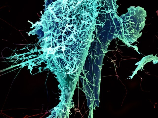 Von NIAID - Ebola Virus Particles, CC BY 2.0, Link